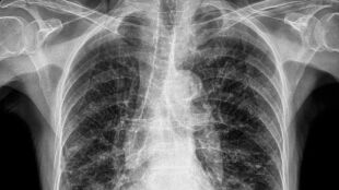 Pyły atmosferyczne mogą powodować zwapnienie płuc